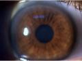 Raindrop cornealis Inlay  9 hónappal a beültetés után
