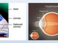 Excimer lézeres kezelések  (PRK)